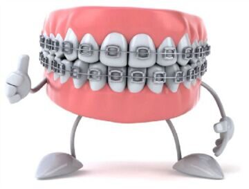 Metal-Braces-on-Tetth